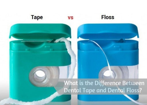 What is the Difference Between Dental Tape and Dental Floss