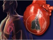 Want to know about Heart bypass surgery cost in India