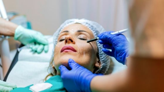 What to Look for When Searching for a Plastic Surgeon