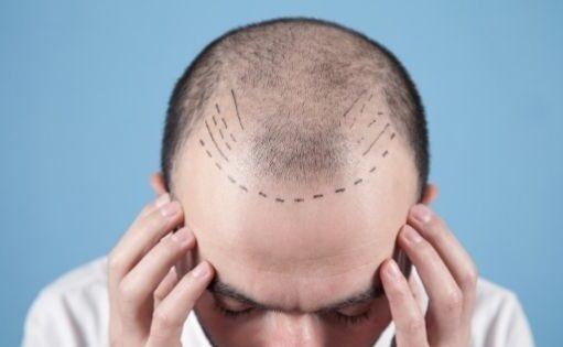Interesting Facts You Need To Know About Hair Transplantation